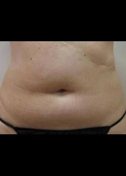 Liposuction – Abdomen