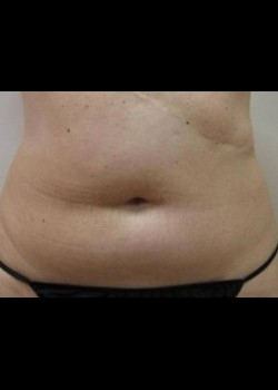 Liposuction – Abdomen